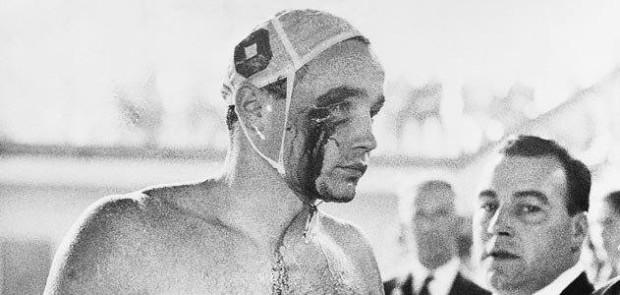 Zádor Ervin fejéből ömlik a vér miután 1956-ban, épp a forradalom idején, Melbourneben, a Szovjetúnió elleni vízilabda mérkőzésen a szovjet csapatkapitány megütötte.